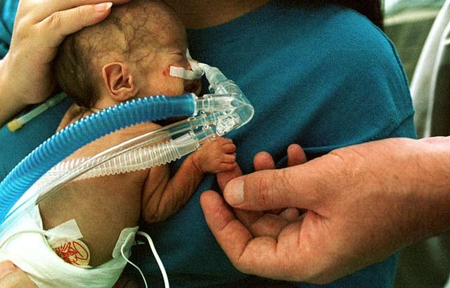 A premature infant with a CPAP breathing tube.